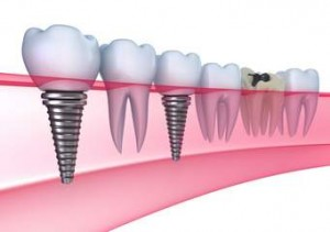 Dental implant image