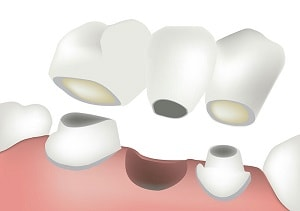 An example sketch of a dental bridge